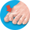 Kladivkový prst?